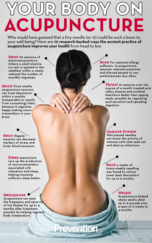 ten reasons to try acupuncture