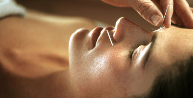 great reasons to try acupuncture