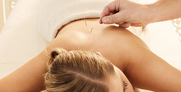 dry needling acupuncture