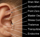 ear auricular acupuncture substance abuse