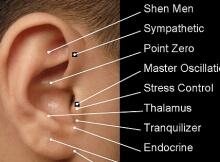 ear auricular acupuncture substance abuse