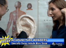 abc news how acupuncture helps with insomnia and sleeplessness