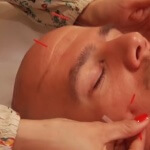 facial acupuncture demonstration